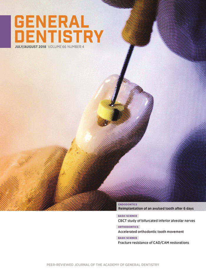 July/August 2018 General Dentistry Cover